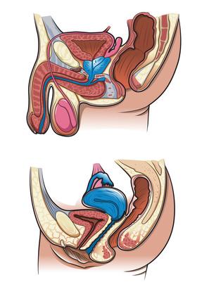 Une autre approche du perinee