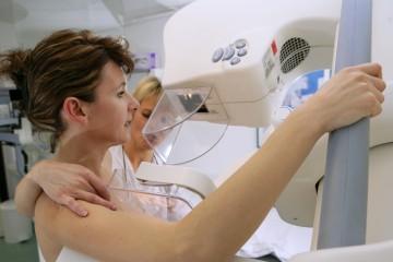mammographie vers un controle plus stricte
