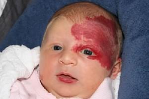 news neuf mois pour les sage femme hemangiome infantile