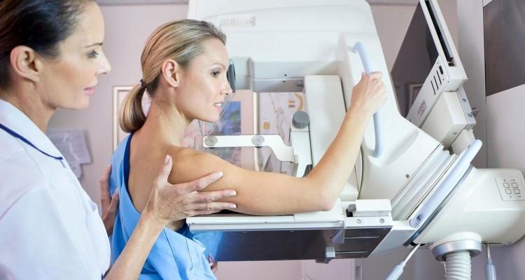 depistage cancer feminin